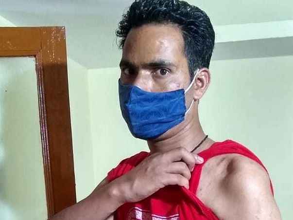 Support Sohan Recover From Hand Damage