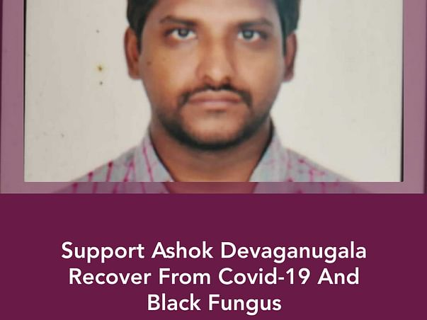 Support Ashok Devaganugala Recover From Covid-19 And Black Fungus