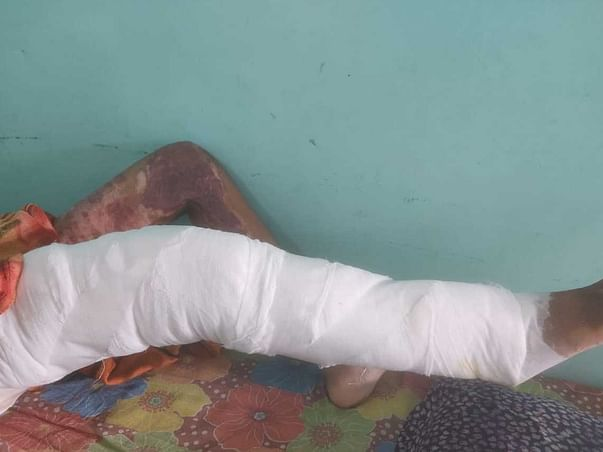 Help ghaziya for her surgery of 3rd degree fire Burns