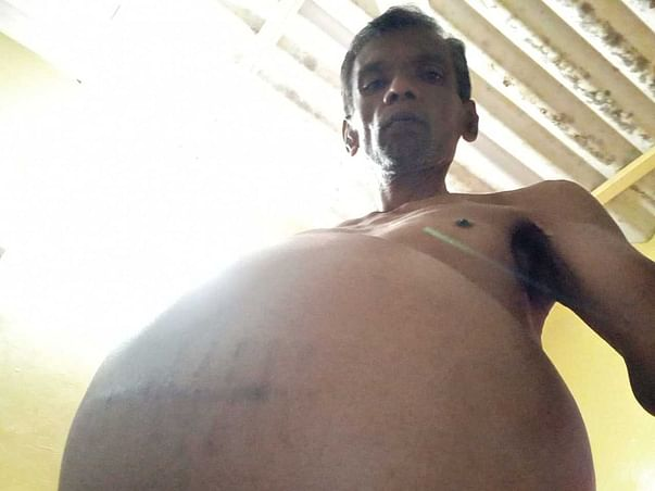 Support Paul Rajarathnam Recover From Liver Cirrhosis