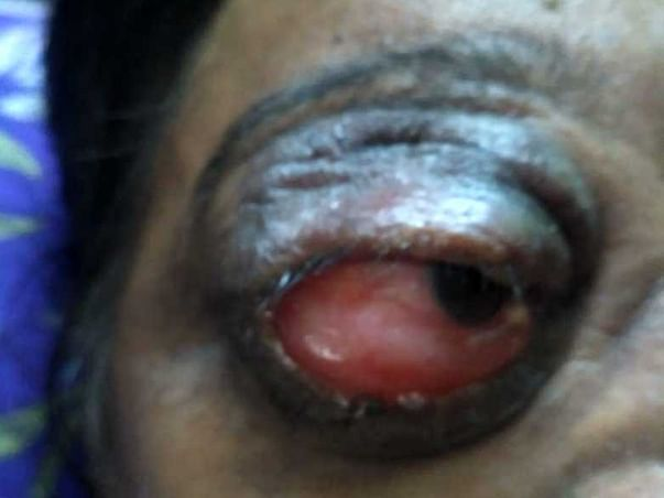 48 Years Old Shakeela Begum Needs Your Help Recover Proptosis & Vascular Malformation Of Left Orbit Of The Eye.