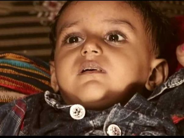 Help Bhawya Fight Gaucher