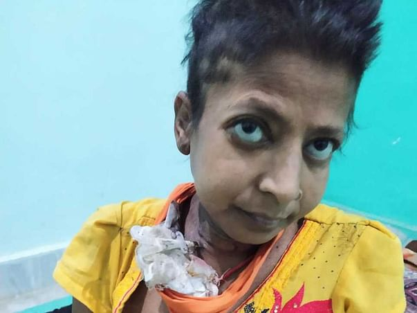 Support Mohini  Recover From Kidney and Liver Failure