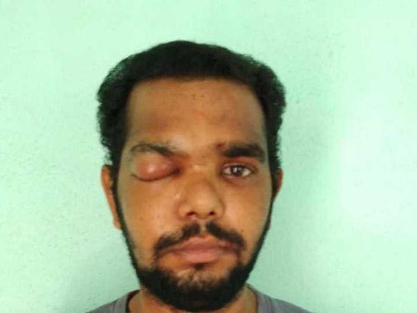 Support Bhima Anka Narasimha Rao Fight To Recover From Black Fungus