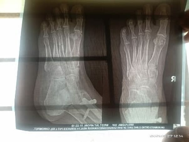 Help My Mother To Undergo Surgery Required Due To Dislocation Of Bones