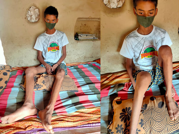 Help My Brother Undergo Treatments.
