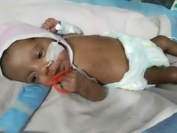 Support Twin Babies of Gayathri To Recover From Premature babies