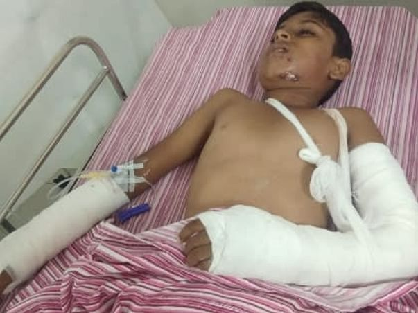 Support My Brother's Son Mohammed Mushtaaq To Undergo Face And Hand Injuries Treatment