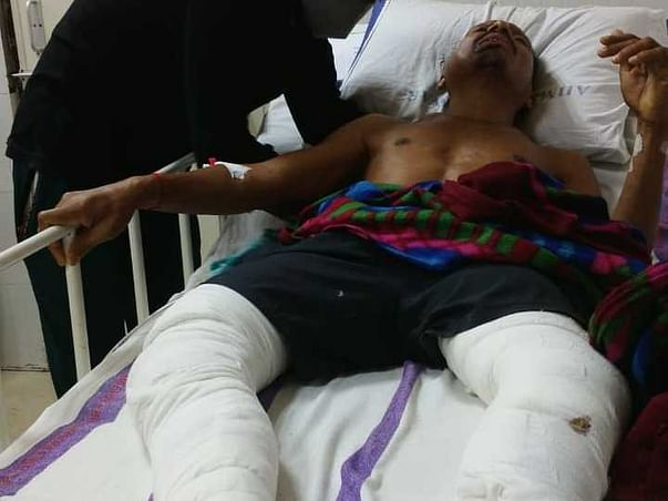 Support Duhkhisayam Naik Recover From Accidental Injuries