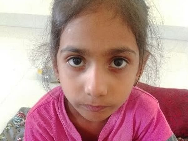Support My Daughter  Arpita For Cleft Pallet Surgery