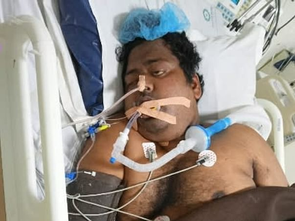 My Brother Is Struggling With 80% Lung Infection Due To Covid-19, Help Him