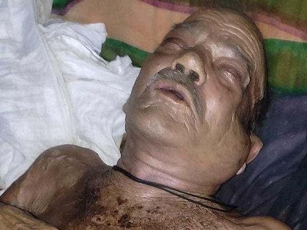 Ram Bhadur Yadav Fight Against Cancer