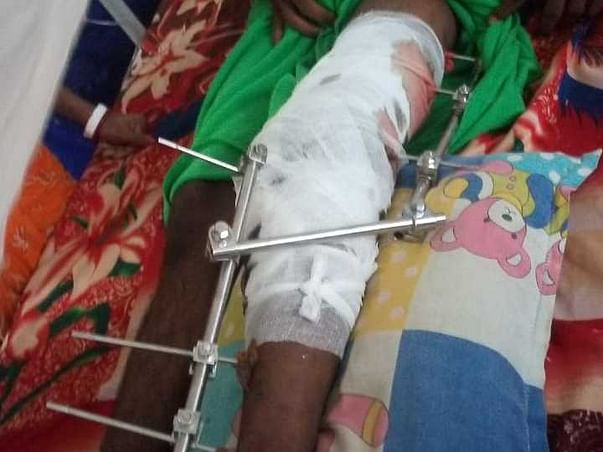 Help Biki Rabi Das To Recover From His Accidental Injuries