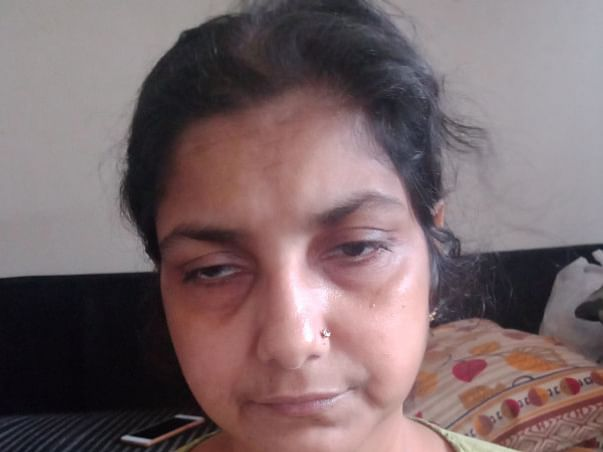 Support Kavita Trivedi Recover From Heart And Cancer Disease