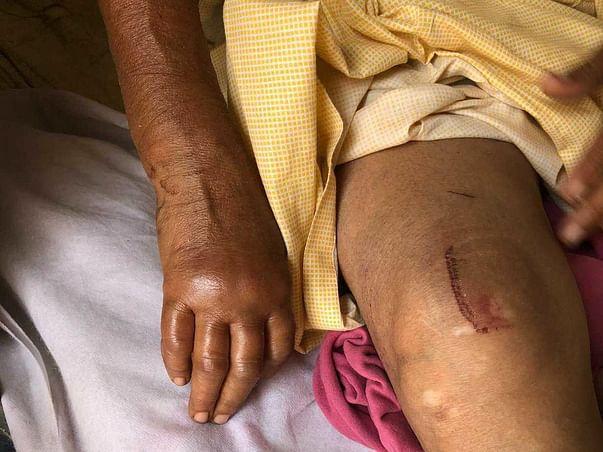 Help Lakshmi and Her Sister Survive