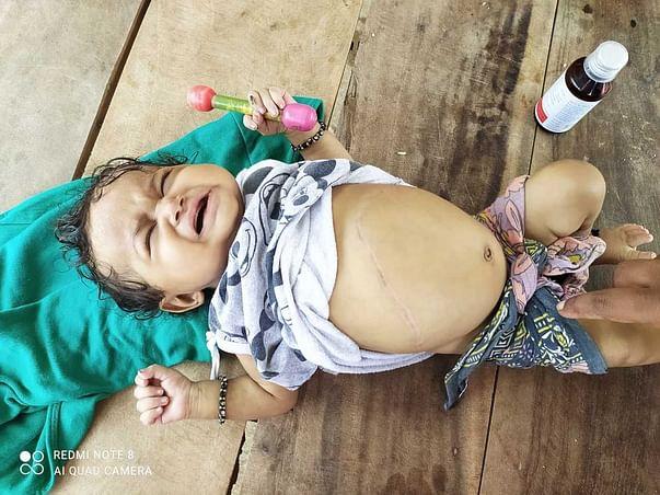 5 Months Old Baby Nithiksha Needs Your Help Undergo Liver Transplant.