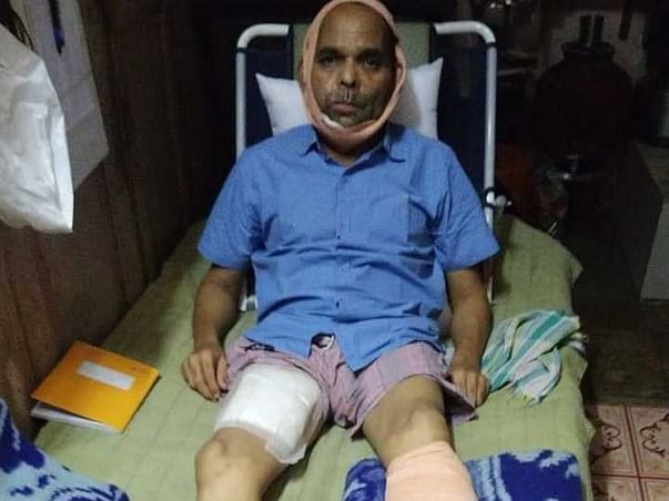 Support Suryakant P Relekar Fight From Right Cheek Cancer