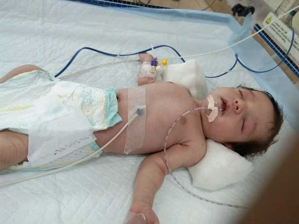 Help Dasyam Sai's Daughter(20 Days Old Baby)
