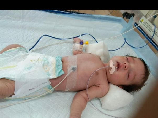 Help Baby Girl Recover From Maple Syrup Urine Disease (msud)