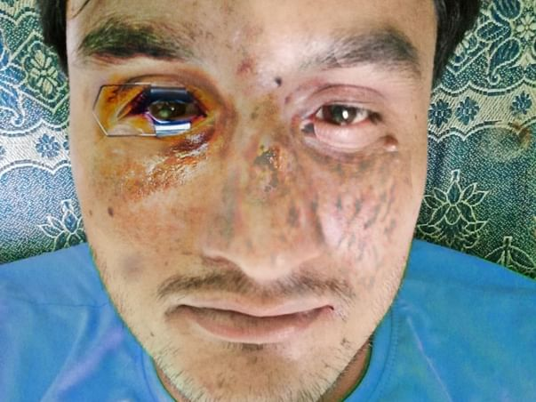 Lost eye Vision (Blurred) due to COVID and Mucormycosis complications