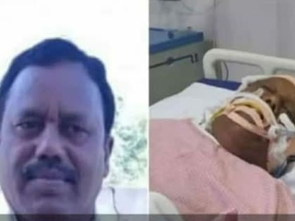 Help Ramesh Get Cure Form Head Injury