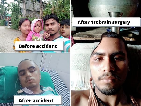 Urgent Brain Surgery Support For Factory Worker After Losing Job