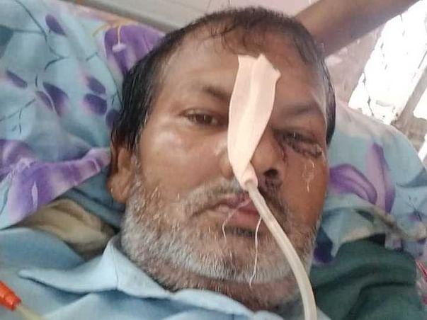Help My Father, Dr. Santosh Yadav Recover Black Fungus