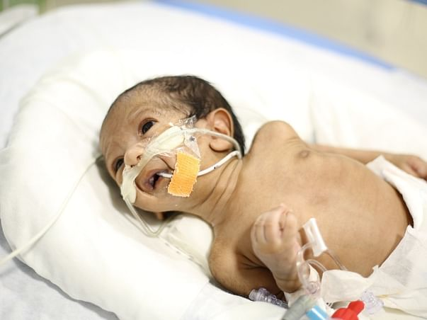 Help my son in his struggle to breathe