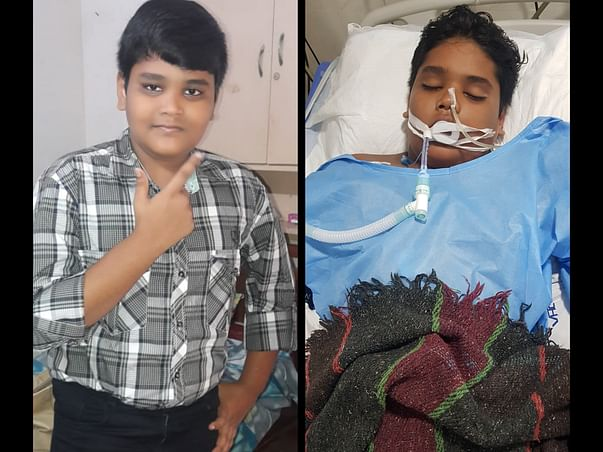 Help Deepak to fight against MISC(Multi system inflammatory syndrome