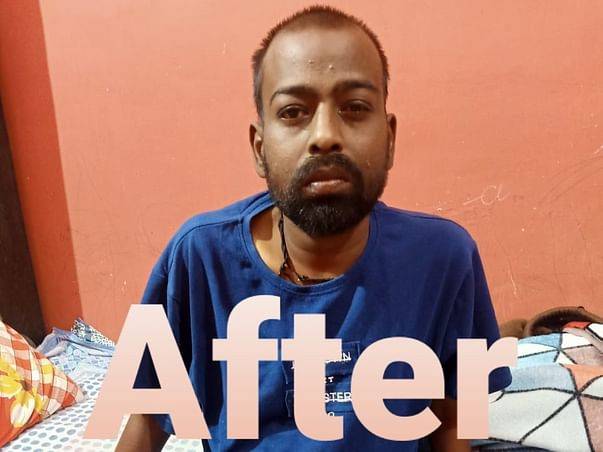Help Sachin Agarwal Raise Funds To Fight Liver Transplantation