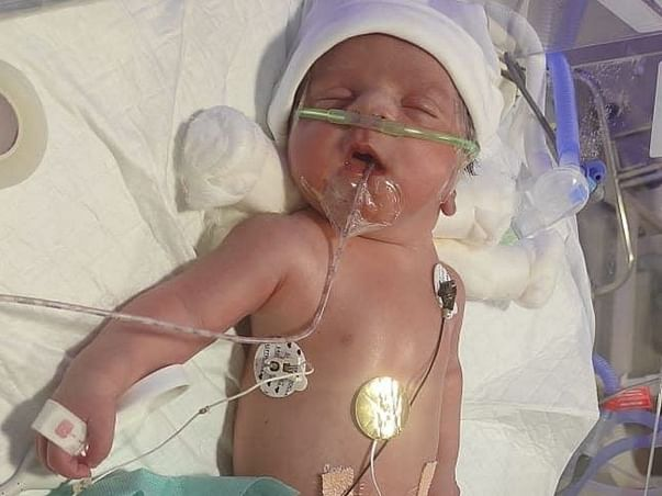 My Preterm Baby Needs Your Help To Survive!