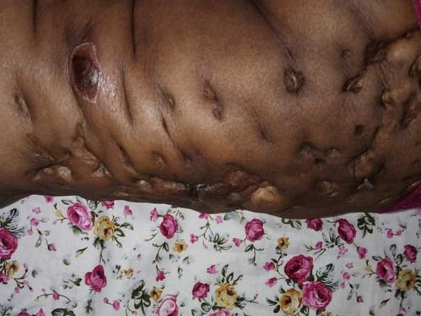 Help To Get Rid Of  Lymphedema And Cardiac Problem