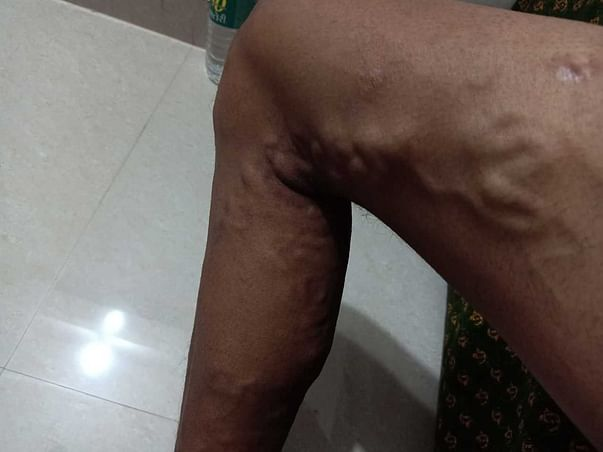 Help needed for 24 years old Medically complex Cook Sandeep Singh