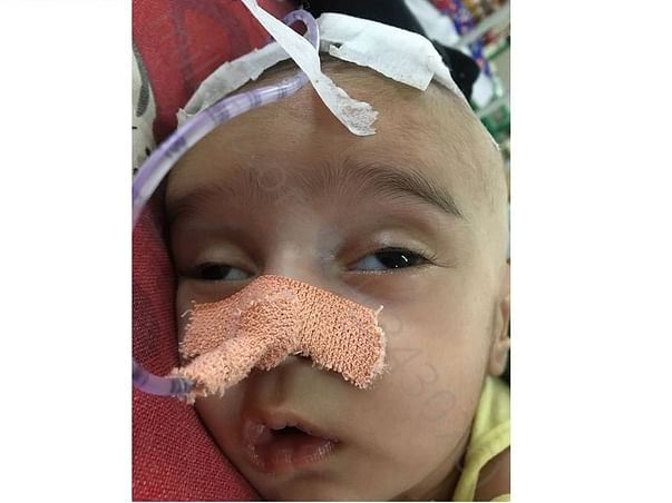 Support 2 Months Old, Baby Zohan Recover From Hydrocephalus