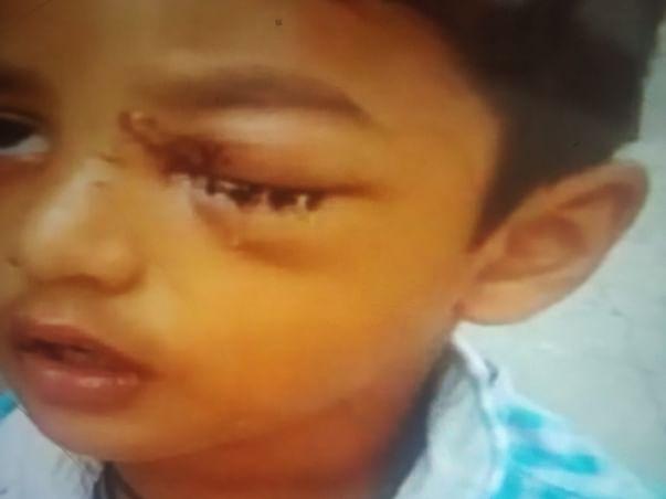Support My Son To Undergo Eye Surgery