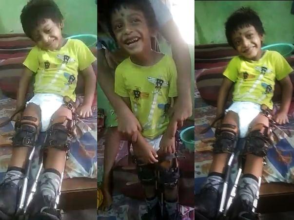 Help Pritam Defeat Handicap & Walk On His feet