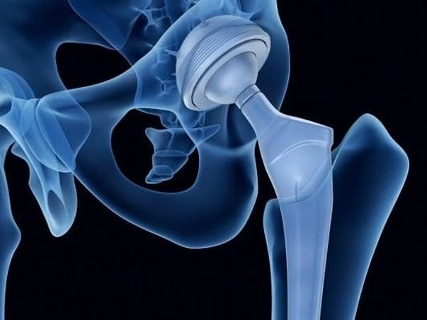 Help me to fight with my hip replacement