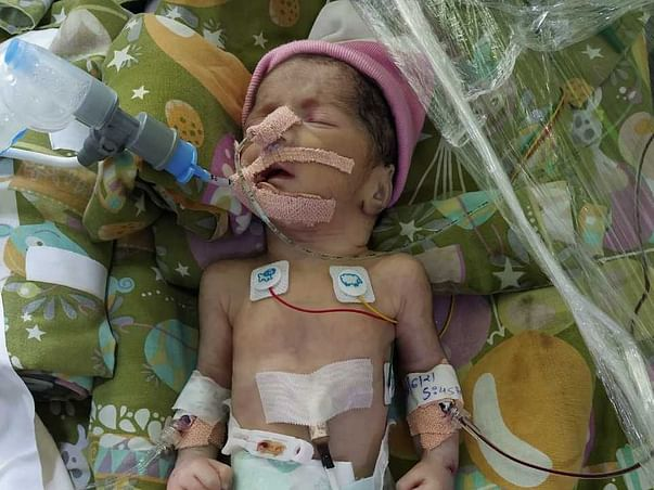 Please help treatment of my 8 day Premature Daughter