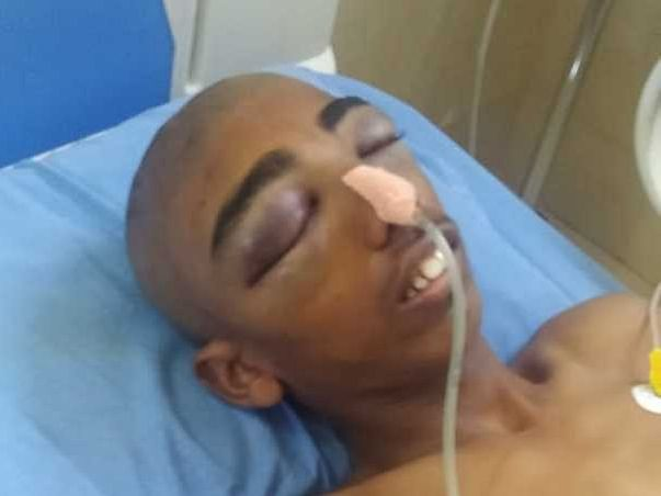 Help Gafoor for Head Surgery.
