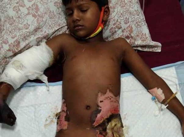 Sai Krishna Need Surgeries For Severe Burns