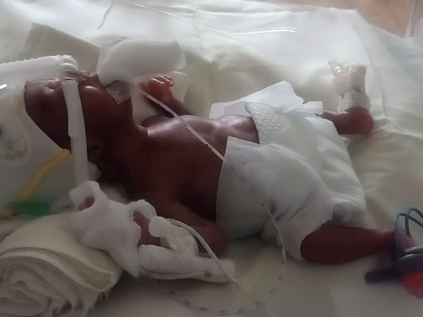 This 16 days old needs your urgent support in fighting EXTREME PREMATURE ON NICU VENTILATOR