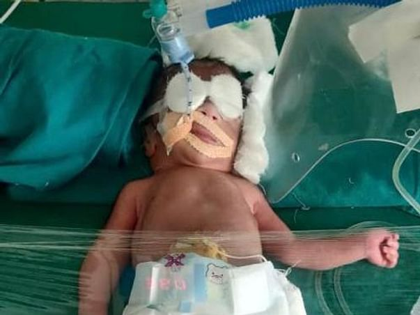 10 Days Old Twin Babies Of Pratibha Needs Your Help To Recover