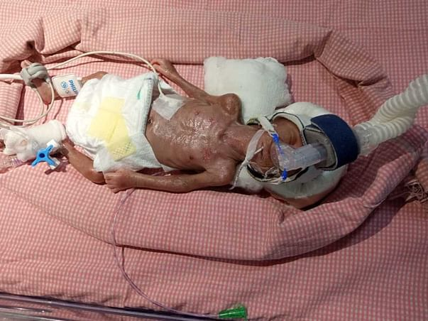 Support Priyanka's Baby Recover From Preterm Birth
