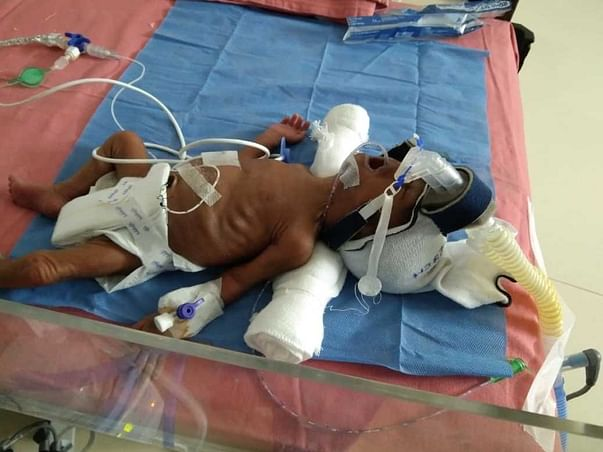 Help My Premature Babies To Survive.
