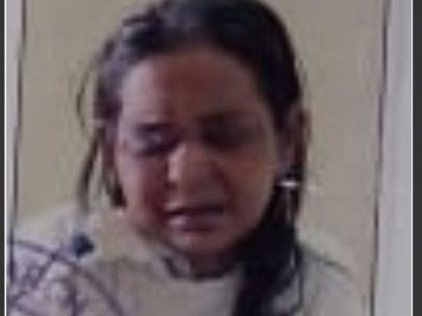 Help My Friend's Wife Anuradha Gupta Fight Post Covid , Mucormycosis