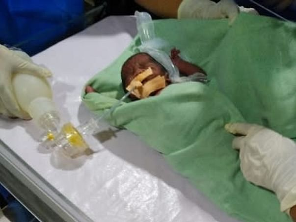 1 month Old Premature Baby Of Mallika Das Needs Your Help To Recover