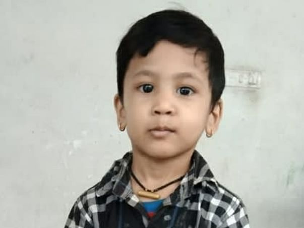 Support 4 Year Old Suman Thapa To Undergo Open Heart Surgery
