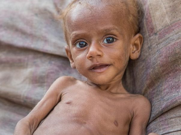 LET'S RAISE SOME HELP FOR THOSE MALNOURISHED CHILDREN