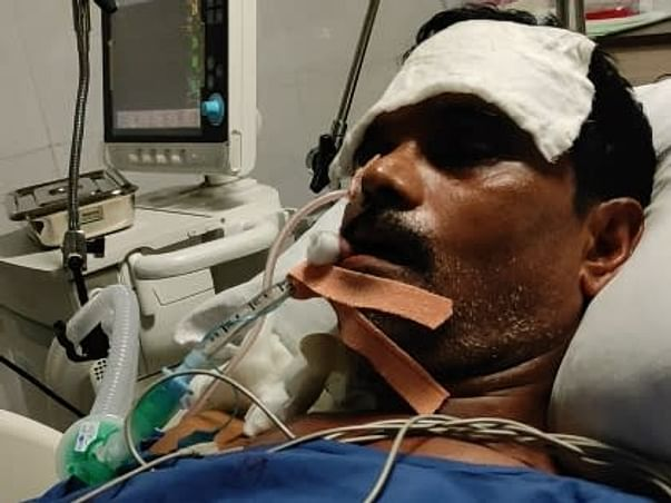Help My Dad To Recover From Multi-organ Failure