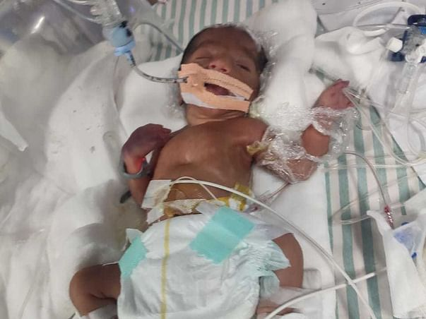 1 Day Old Premature Baby Of Elamathi Needs Your Help To Recover
